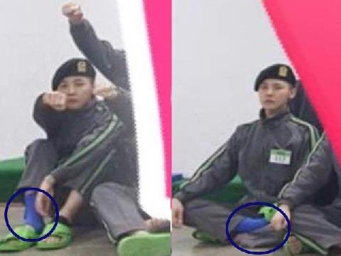 G-Dragon phải nhập viện mổ mắt cá chân khi đang trong quân ngũ