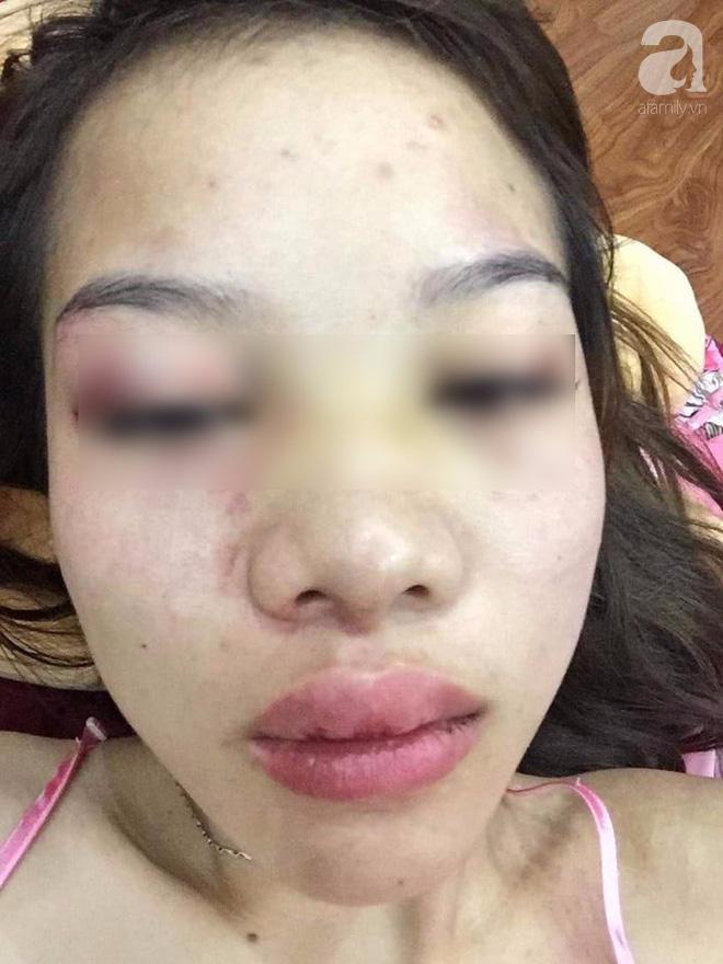 NÓNG: Clip người đàn ông ngoại quốc bạo hành, tung clip cô gái Việt đang van xin lên mạng - Ảnh 3.